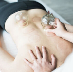 cupping, massage, eastern medicine